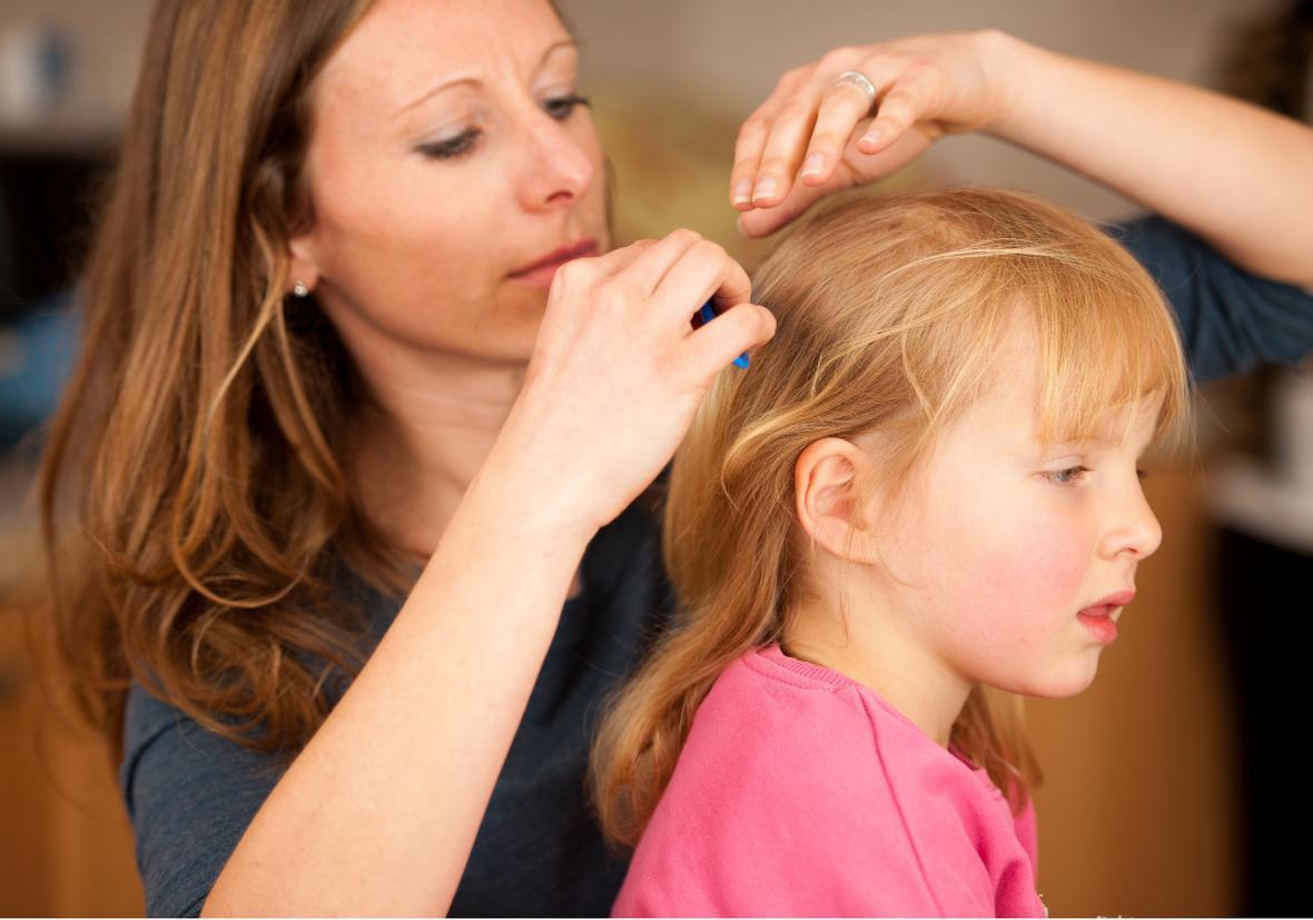 treat head lice edinburgh